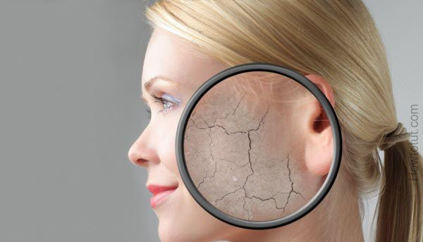 Dehydrated skin Treatment